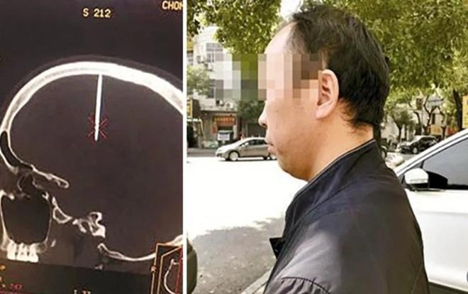 Bác sĩ tá hỏa khi phát hiện móng tay dài 48 mm trong hộp sọ bệnh nhân Ảnh 1