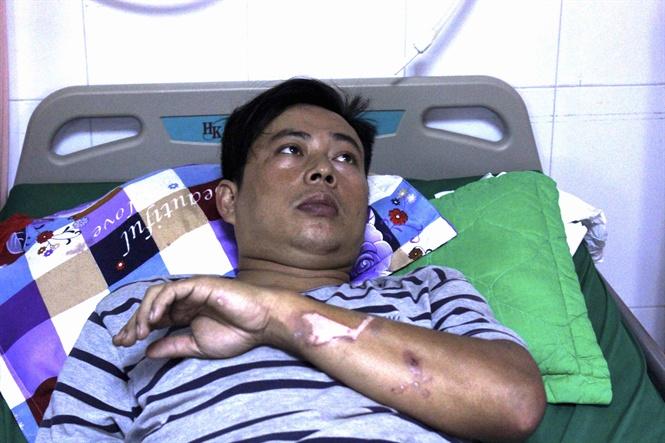 Kịp thời cứu sống bệnh nhân bị điện giật bất tỉnh, ngưng tim Ảnh 1