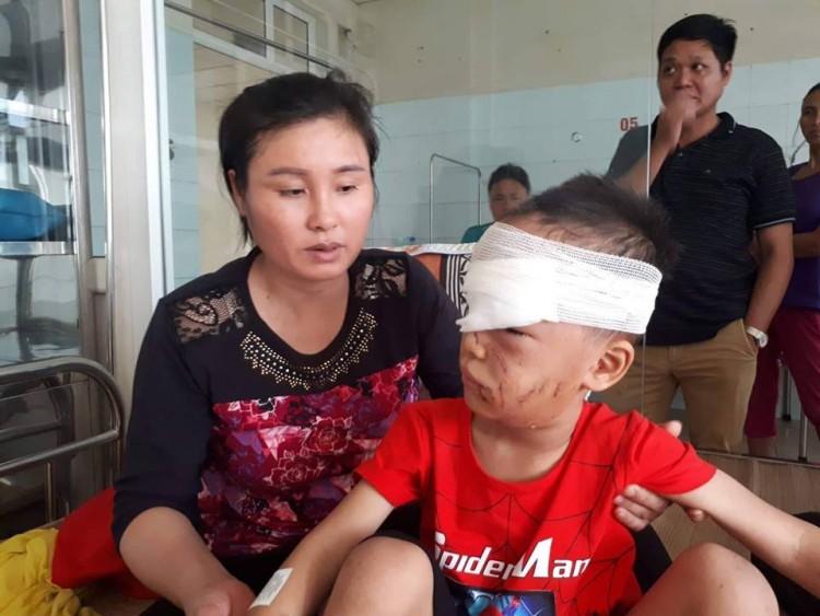 Đang chơi ngoài ngõ, bé trai 6 tuổi bị chó nhà cắn liên tiếp vào đầu và mặt Ảnh 1