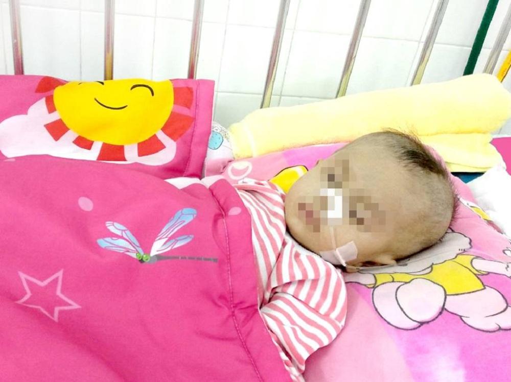 Cứu sống bệnh nhi 8 tháng tuổi đã bị ngưng tim Ảnh 1