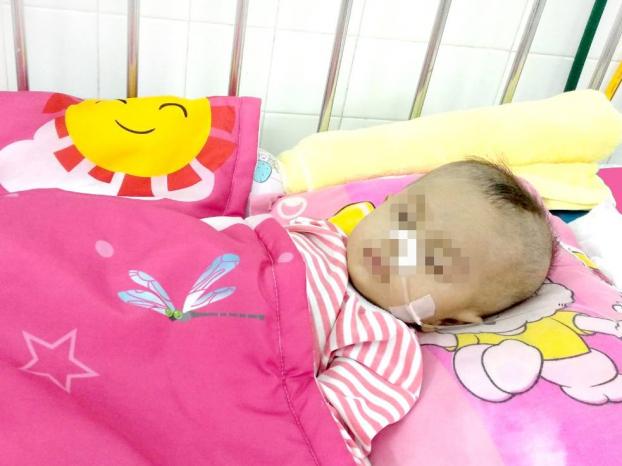 Giành lại sự sống cho bệnh nhi 8 tháng tuổi bị hẹp khí quản bẩm sinh, tỷ lệ tử vong 90% Ảnh 1