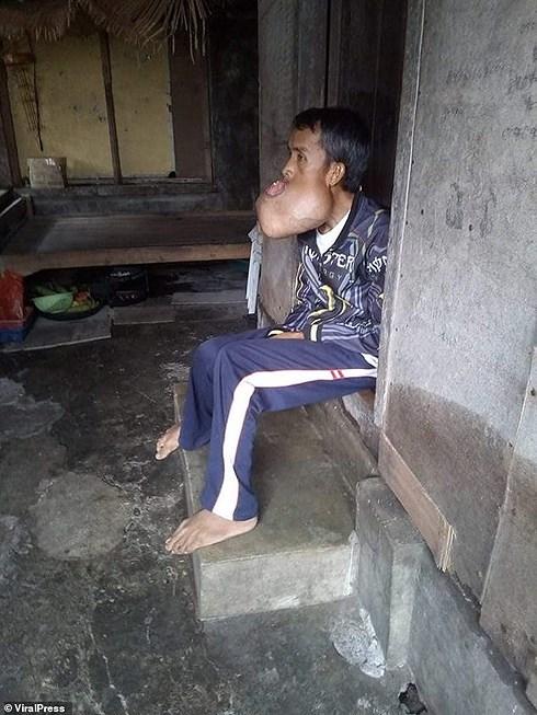 Thợ xây nghèo Philippines không lấy được vợ... vì khối u phá hỏng mặt, vỡ hết hàm Ảnh 4