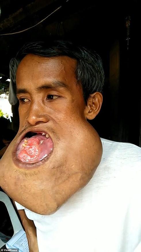 Thợ xây nghèo Philippines không lấy được vợ... vì khối u phá hỏng mặt, vỡ hết hàm Ảnh 2
