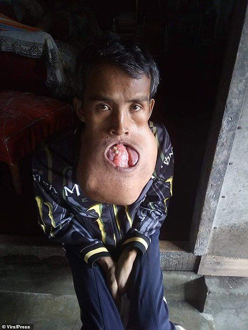 Thợ xây nghèo Philippines không lấy được vợ... vì khối u phá hỏng mặt, vỡ hết hàm Ảnh 1