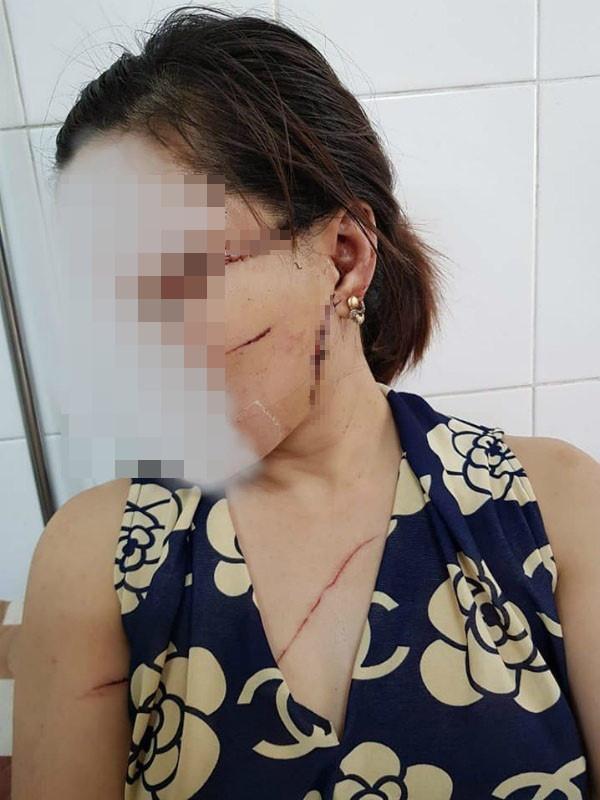 Gã chồng cắt gân chân vợ do ghen tuông lĩnh 27 tháng tù Ảnh 1