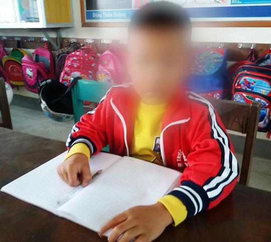 Vụ cô giáo tát học sinh lớp 1 nhập viện ở Quảng Bình: Công an vào cuộc Ảnh 1