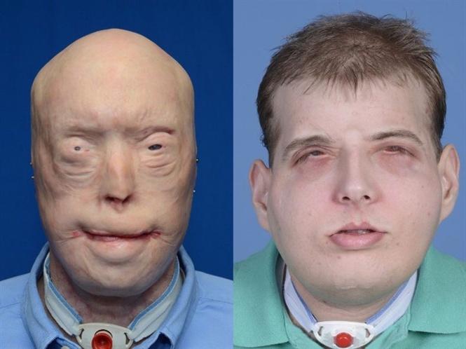 Cấy ghép - Khoa học viễn tưởng trong phẫu thuật thẩm mỹ? Ảnh 2