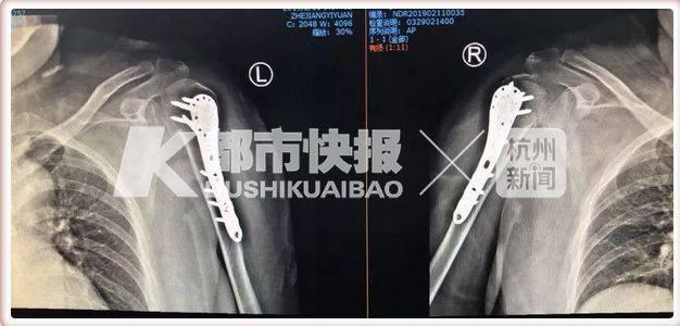 Người phụ nữ bị gãy xương tay vì cái ôm của chồng Ảnh 1