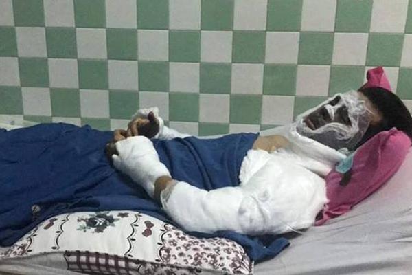 Bộ Công an vào cuộc điều tra kẻ tạt axit, cắt gân chân Việt kiều Ảnh 2