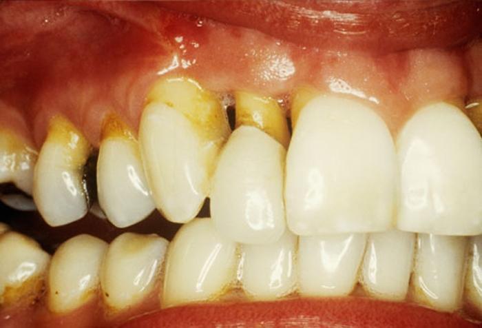 Những nguyên nhân khiến răng ê buốt Ảnh 4