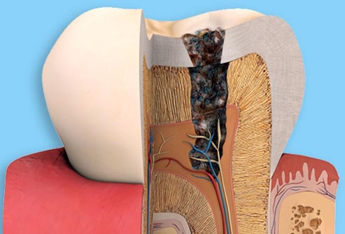 Những nguyên nhân khiến răng ê buốt Ảnh 9