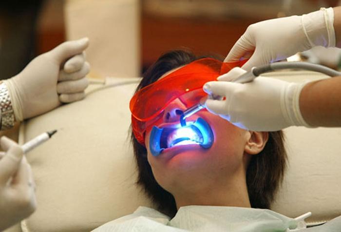 Những nguyên nhân khiến răng ê buốt Ảnh 3