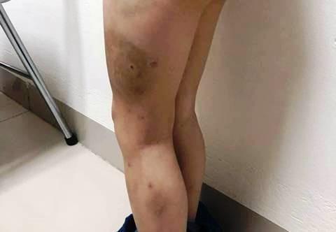 Bé 7 tuổi bị bố bạo hành: Người mẹ đau đớn gửi đơn đến BV Việt Đức Ảnh 1