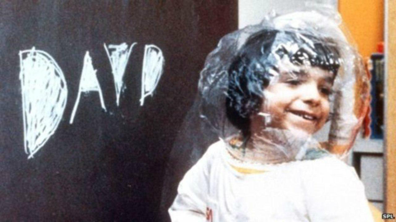 Dùng virút HIV chữa bệnh 'em bé bong bóng' Ảnh 1