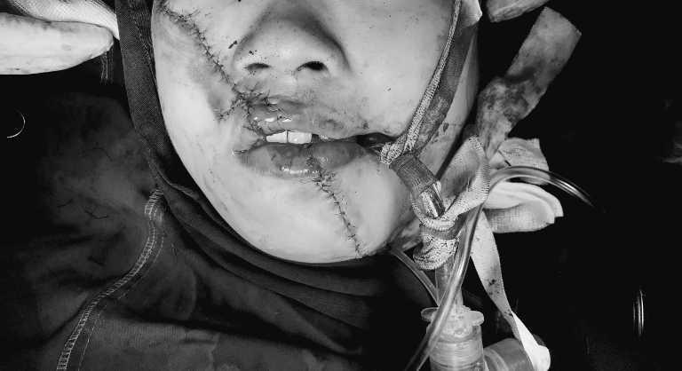 Tạo hình thành công cho người phụ nữ bị dập nát toàn bộ vùng mặt do tai nạn Ảnh 1