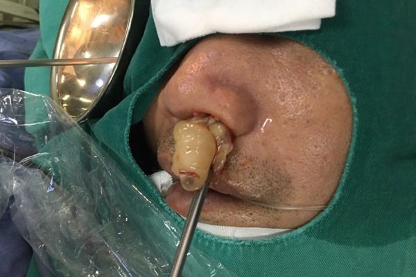 10 năm điếc ngửi, bác sĩ lôi ra thủ phạm chình ình trong mũi Ảnh 1