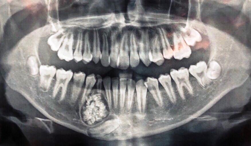 Mổ thành công ca u răng hiếm gặp, lấy ra 100 cái răng trong khối u Ảnh 1