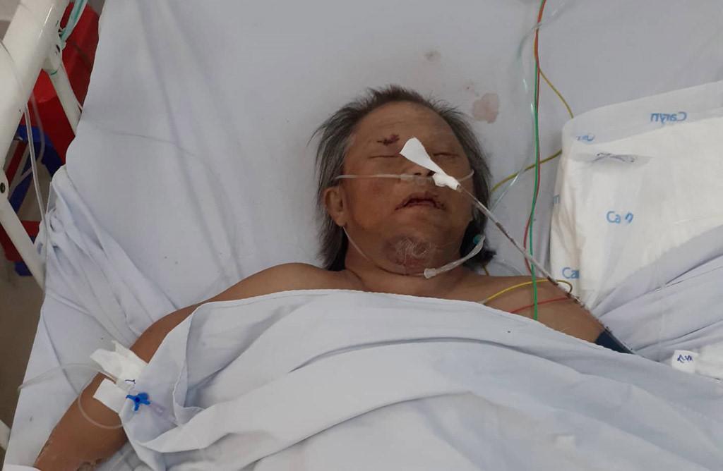 Người đàn ông mù bị tai nạn chấn thương sọ não cần giúp đỡ Ảnh 1