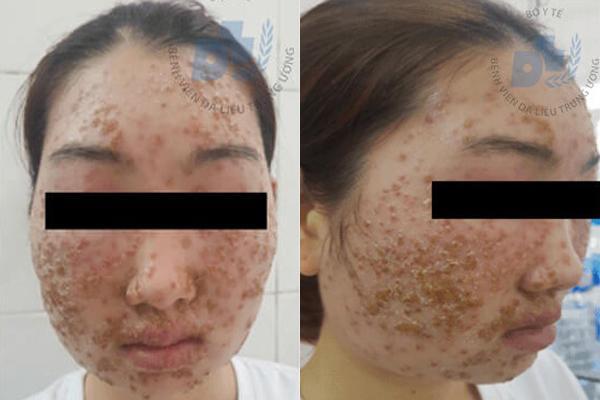 Mặt thiếu nữ bong da từng mảng sau khi dùng bột rửa mặt Ảnh 1
