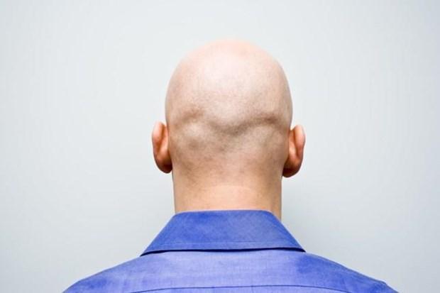 Ô nhiễm không khí có thể gây rụng tóc và hói đầu Ảnh 1