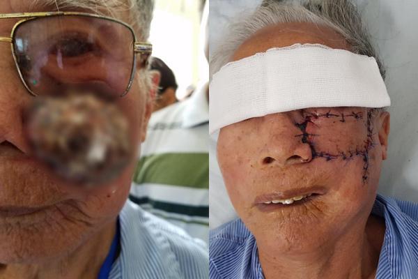 Kinh hãi việc cụ ông 91 tuổi phải khoét một bên má vì điều trị khối u bằng đắp lá Ảnh 1