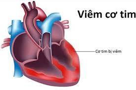 Bệnh viêm cơ tim có thể xuất phát từ vi rút gây cảm cúm thông thường Ảnh 2