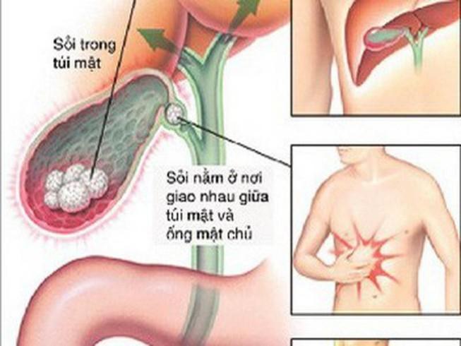 Cách phòng sỏi mật tái phát sau mổ Ảnh 1