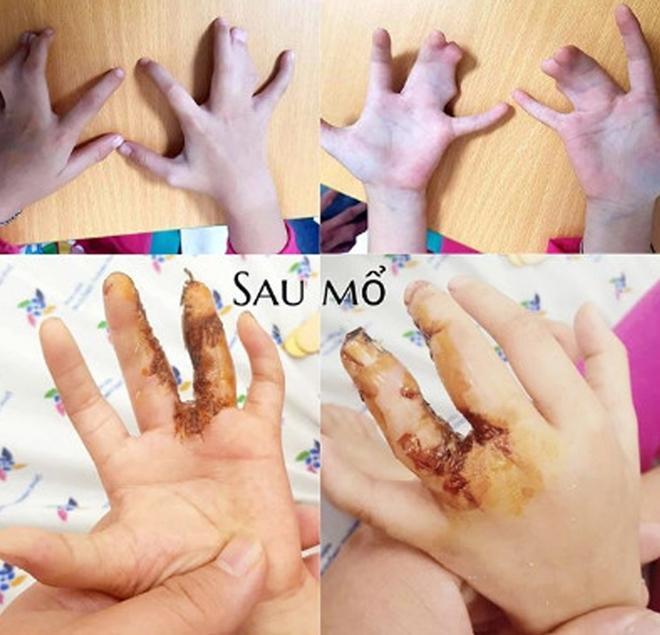 Phẫu thuật thành công bàn tay 'càng tôm hùm' cho bé 5 tuổi Ảnh 1