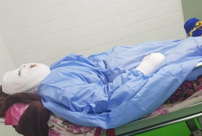 Ghen tuông, chồng đổ dầu sôi vào mặt vợ trong lúc ngủ Ảnh 1