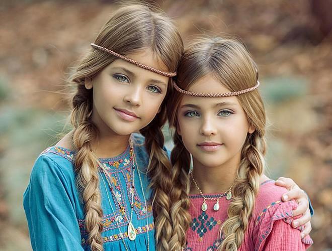 Giải mã sức hút của những cặp song sinh được mệnh danh đẹp nhất thế giới Ảnh 3