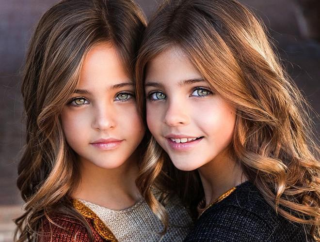 Giải mã sức hút của những cặp song sinh được mệnh danh đẹp nhất thế giới Ảnh 1