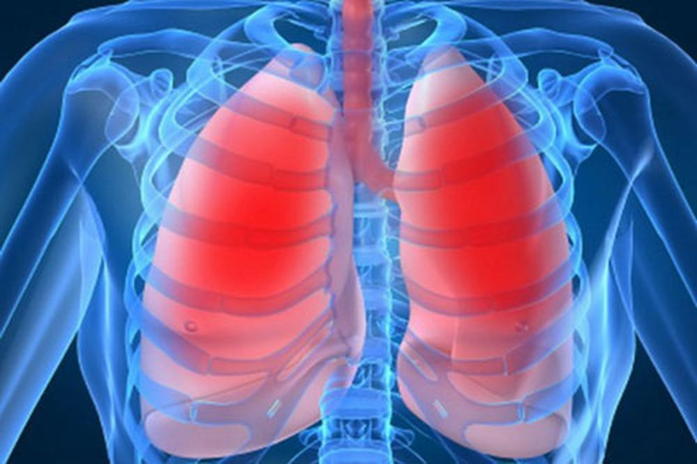 Bệnh phổi