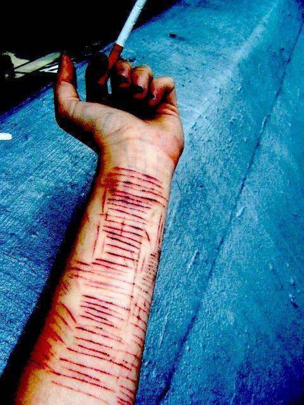 Một nữ sinh đã cắt rạch tay nhiều nhát do mắc hội chứng hủy hoại bản thân. Ảnh minh họa