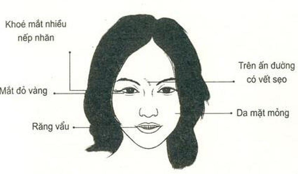 net-tuong-khac-trong-cach-xac-dinh-net-tuong-khuon-mat-p1-4