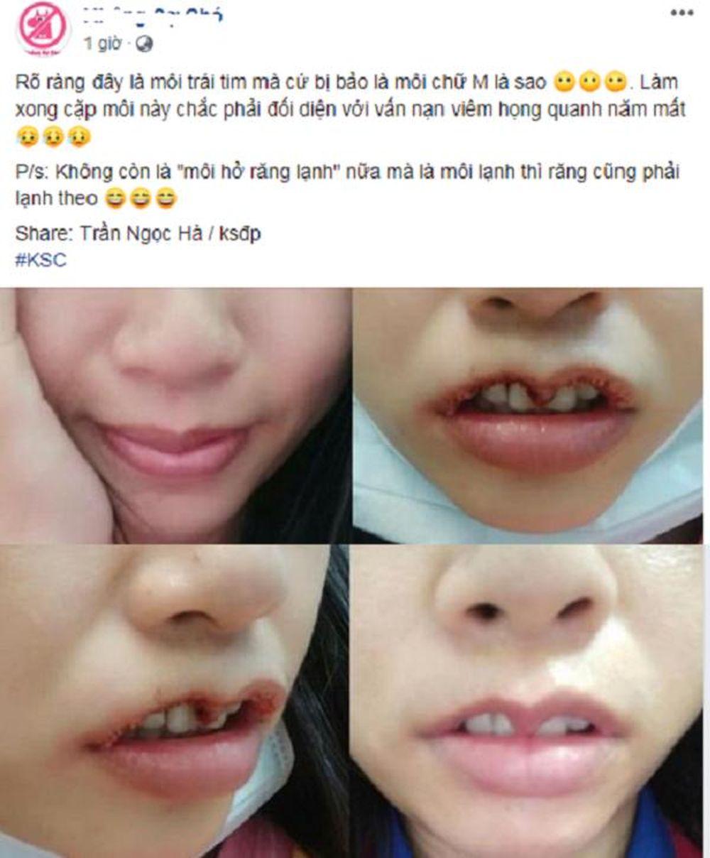 Hình ảnh trước và sau khi cắt môi trái tim của cô gái trẻ vừa hài hước vừa đáng thương.