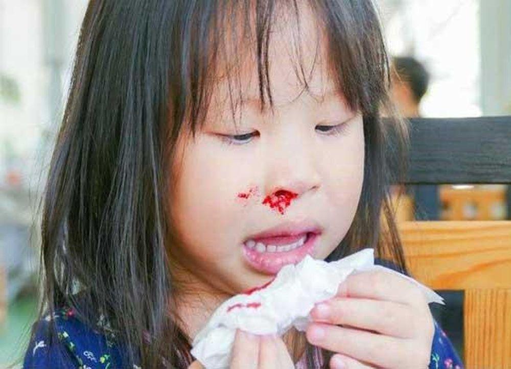 Trẻ nhiễm HIV chảy máu cam