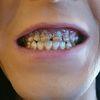 Nghiện nước tăng lực, nam sinh 21 tuổi mục gãy hết răng