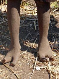 Bộ lạc 'chân đà điểu' kỳ lạ ở châu Phi