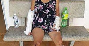 Sức khỏe thai phụ bị chồng đánh gãy tay chân bây giờ ra sao?