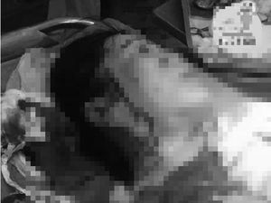 Hẹn nhau giải quyết ghen tuông, một phụ nữ bị đâm rách mặt