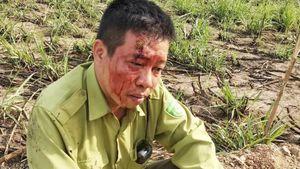Khởi tố nghi can hành hung kiểm lâm Vườn Quốc gia Yok Đôn