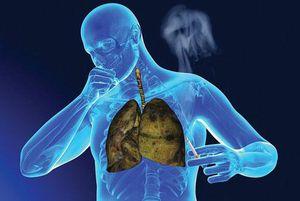 Nếu bàn tay có dấu hiệu này hãy đi khám ngay kẻo ung thư phổi sắp 'ghé thăm' bạn