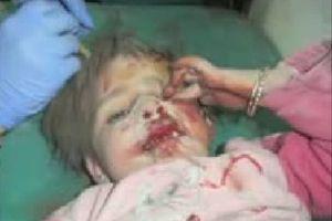 Tàn bạo thai phụ, trẻ em Syria thành 'bia đạn sống'