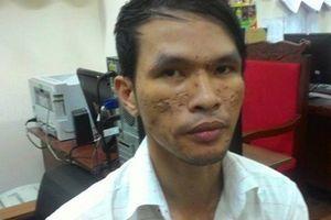 Động cơ nào khiến Dũng bạo hành bé trai Campuchia?