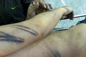 Khởi tố, bắt giam 2 cảnh sát đánh chết bị can trong nhà tạm giữ
