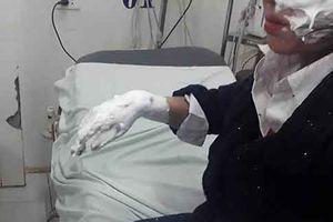 Nổ bóng bay galaxy, 3 sinh viên bị bỏng nặng