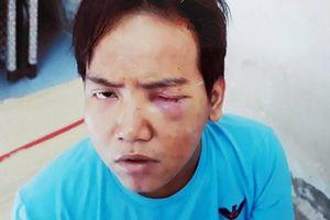 Bảo vệ dân phố sát hại bé trai 6 tuổi ở Sài Gòn bị tâm thần phân liệt