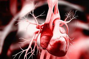 Nguyên nhân gây ra hội chứng ngưng tim đột ngột