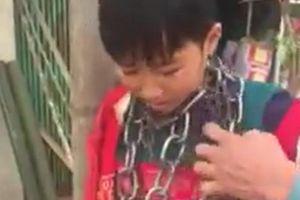 Làm rõ vụ việc bé trai bị quấn xích quanh cổ