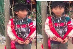 Người chú xích cổ cháu trai ở Thanh Hóa bị phạt cảnh cáo